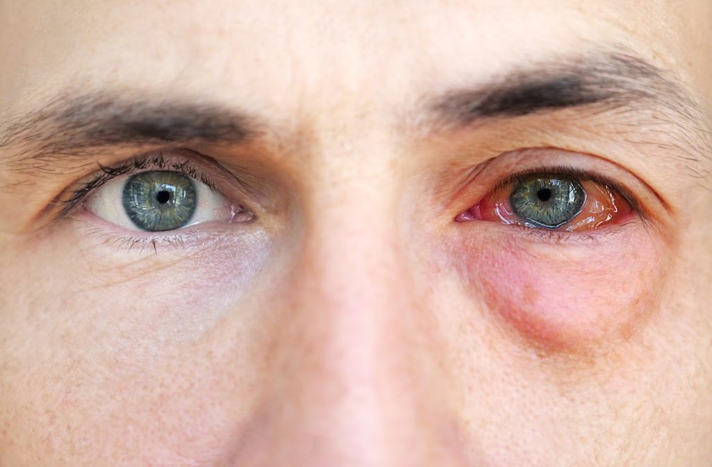 Person with one healthy eye and one allergic eye staring straight ahead